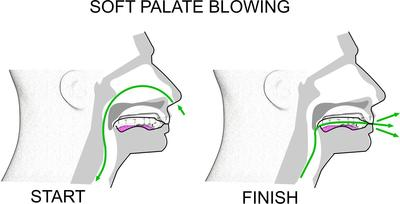 Soft palate blowing